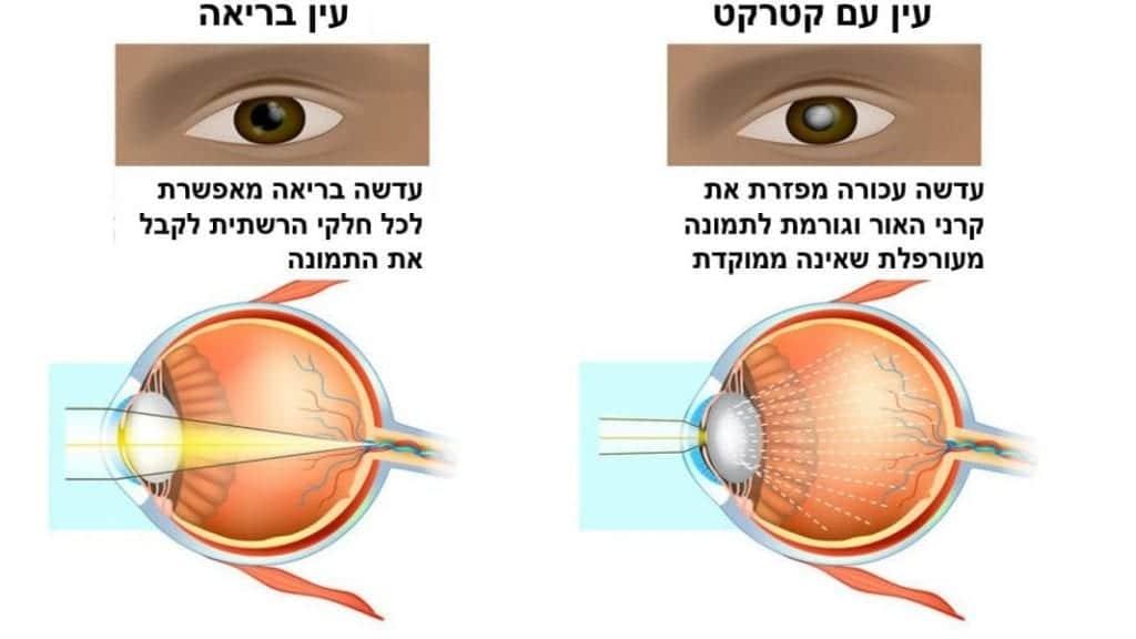עין בריאה מול עין שצריך לעבור ניתוח קטרקט